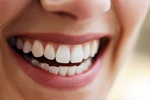 Cosmetic Dentistry Dallas | Teeth Whitening | Daily Smiles
