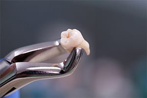Tooth Extractions Dallas | Emergency Dentist | Daily Smiles